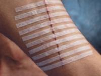 Полоски для бесшовного сведения краев кожной раны 25×125мм